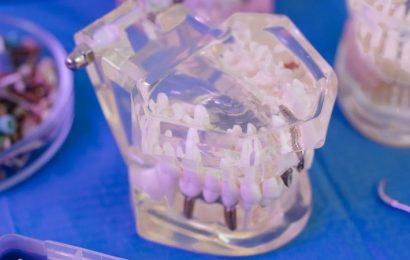 Principales tipos de prótesis dentales que ofrecen los mejores laboratorios dentales del país
